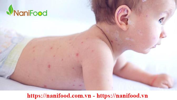 Bệnh Sởi - Những bệnh thường gặp vào mùa hè mọi người cần lưu ý